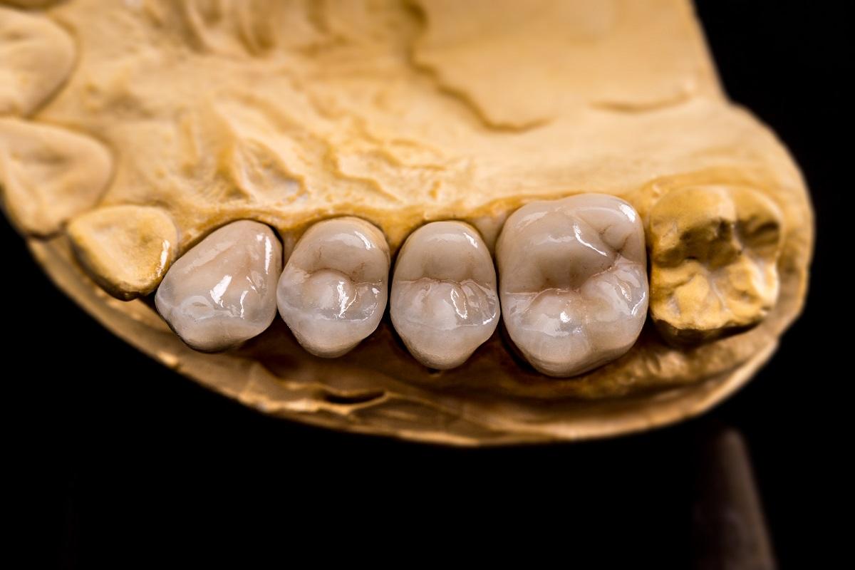Prótese dentária em modelo de giz blog dental cremer lab