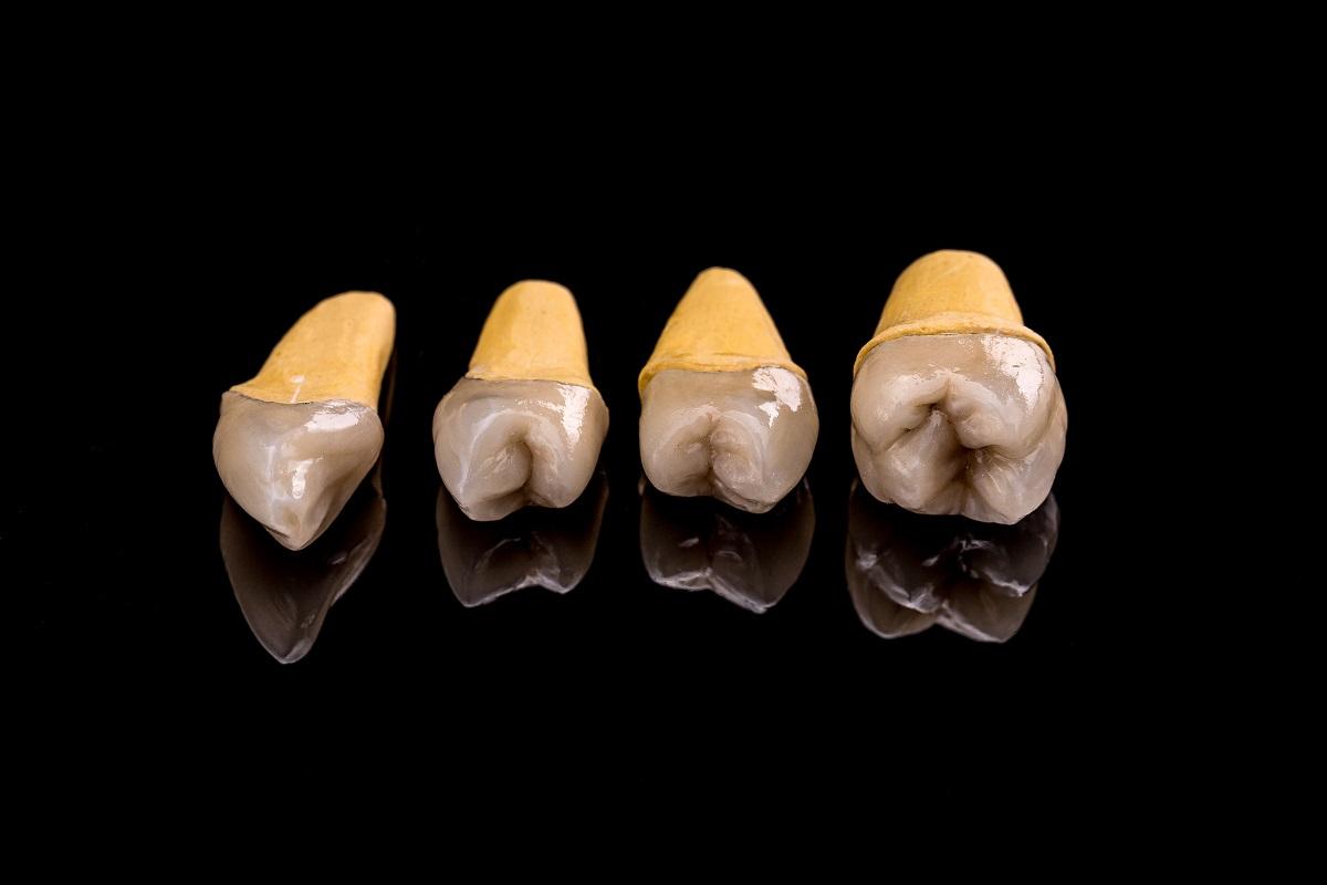 Coroas dentárias metalo-cerâmicas com travas para fixação de próteses removíveis blog dental cremer lab