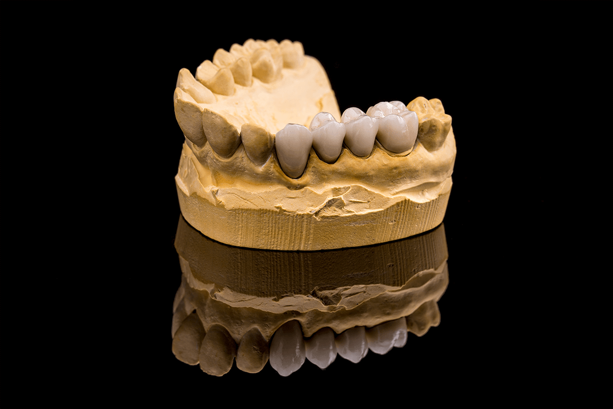 confeccao-de-um-protocolo-ceramico