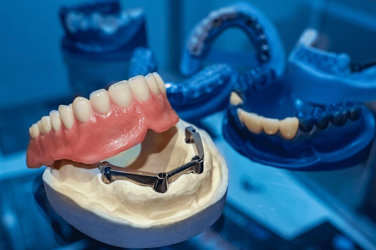 Gengiva artificial em prótese protocolo Dental Cremer Laboratório