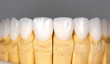 Prótese dentária em zircônia: saiba as vantagens e diferenças